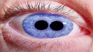 Most Shocking Eyes   Eye Tattoos  Cataracts  Pupula Duplex