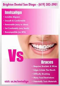 Invisalign vs Braces | Visual.ly