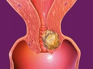 Лечение папиллом влагалища азотом