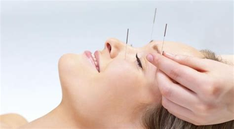 facial rejuvenation acupuncture helps  reduce bags