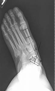 Radiograph Showing Standard Ap Flatfoot Measurements In