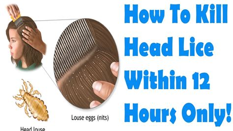 How To Get Rid Of Lice Overnight