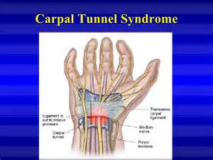 Carpal Tunnel Syndrome.ppt Carpal Tunnel Syndrome