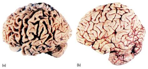 Involves parts of the brain that control thought, memory, and language. Alzheimer's Disease