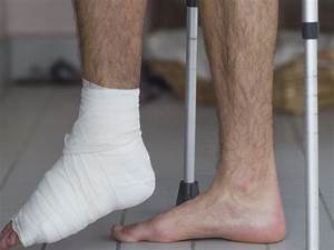 Ditch The Cast  Some Broken Ankles May Heal In Half The