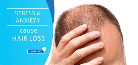 Excessive Hair Shedding Stress by Hair Loss Causes Global Hair Health Growth Expert