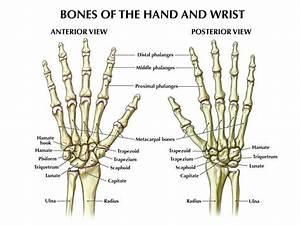 Fracture Wrist