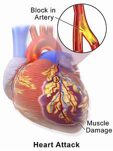 Causes And Treatment To Reduce Heart Disease