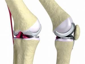 Лечение артроза коленного сустава красноярск