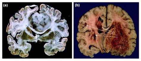 malignant gliomas perverting glutamate  ion homeostasis  selective advantage trends