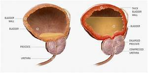 Should Men With An Enlarged Prostate Avoid Certain