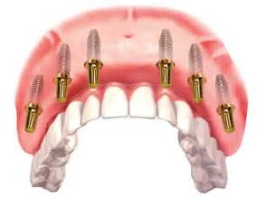 Image result for All On 6 Dental Implants