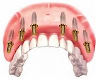 Image result for All On 6 Dental Implants