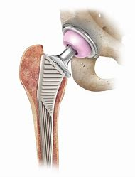 Best Hip-Replacement - ideas and images on Bing | Find what