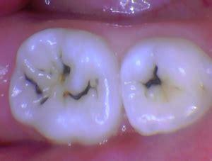 sdf pediatric dentistrys  silver bullet pediatric