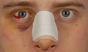 Poliepen neus verwijderen