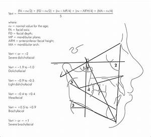 Five Cephalometric Measurements Used In The Vert Index  1  Facial Axis