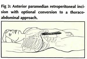 Anterior Paramedian Retroperitoneal Surgical Approach To The Lumbar Spine