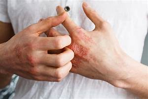 5 Unusual Causes Of Eczema U0026 How To Get Relief Naturally