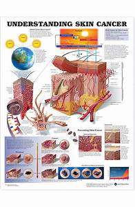Anatomical Chart Company Understanding Skin Cancer