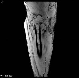 Dedifferentiated chondrosarcoma with pathological fracture ...
