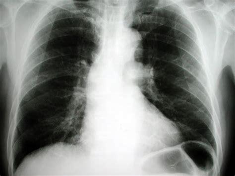 肺がん 末期 症状