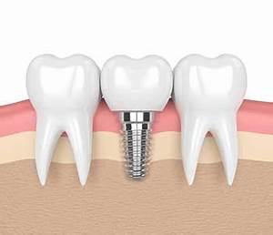 Dentist Charleston SC - Dental Care | Mouth Carolina Dentistry
