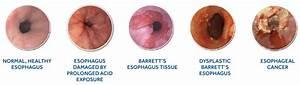 Medtronic  U2013 What Is Barrett U2019s Esophagus