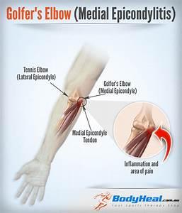 lateral epicondylitis rehab