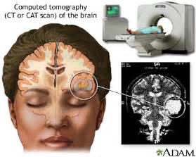 how does it take to get cat scan results ct scan of the brain medlineplus encyclopedia image