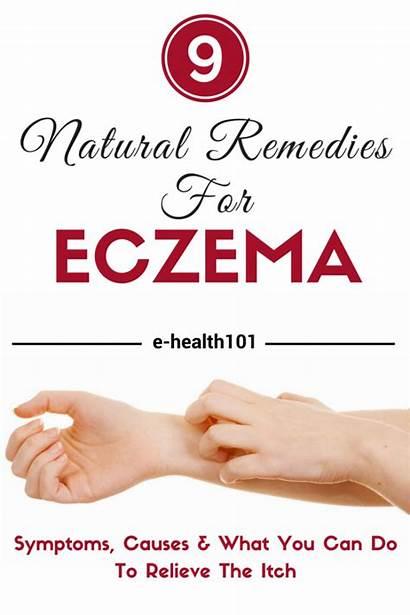 Eczema Symptoms Causes Remedies Natural Healing Bestofsnoring