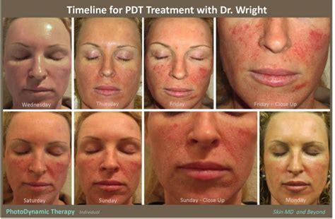 blue light photodynamic therapy photodynamic therapy plano tx pdt frisco tx acne
