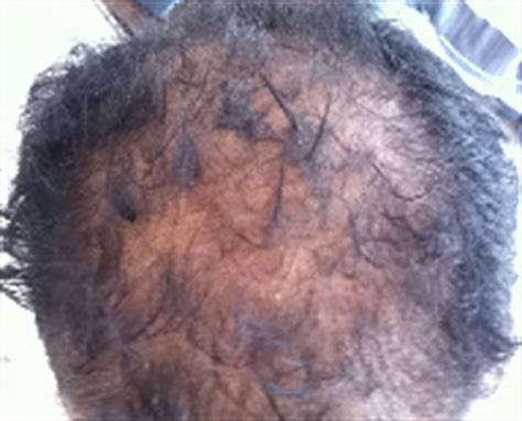 excessive hair shedding itchy scalp get rid excessive scalp