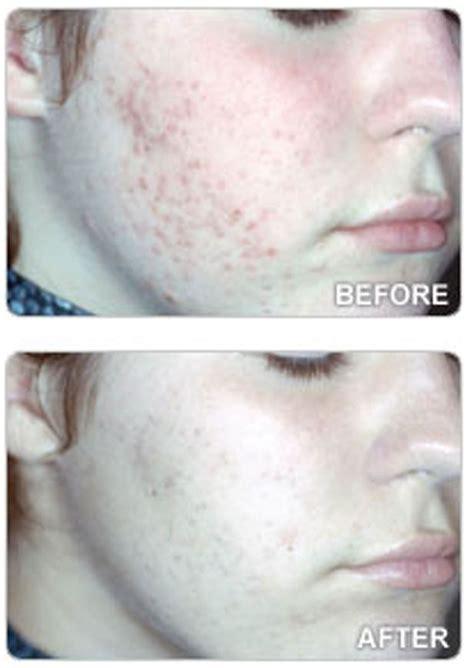 Centro Dermatologico Anti Acne: Eliminare l'acne con la