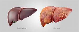 Psoriasis alcoholic liver disease