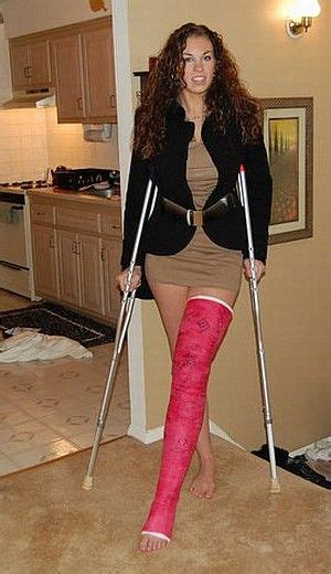Cast And Crutches Before I Die Pinterest Leg Cast