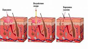 Лечение бородавок лазером в нижнем новгороде