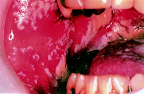 oral candidiasis postgraduate medical journal