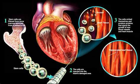 Scientists Grow Human Heart Tissue That Can Beat