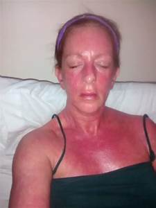 U00bb Eczema Sufferer Has Clear Skin For First Time After Quitting Steroid Creams She Used For Over