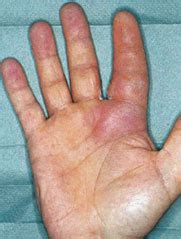 common acute hand infections american family physician