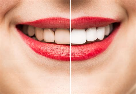 cosmetic dentist beverly hills ca expert cosmetic dentistry