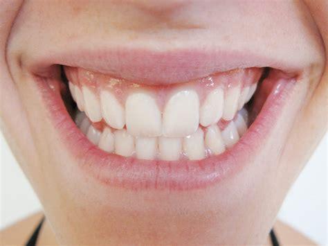 Ließ Amelie Klever Von Gntm 2011 Ihre Zähne Bleichen