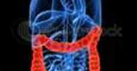 treat  impacted colon livestrongcom