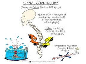 Email This BlogThis! Share to Twitter Share to Facebook Share to ... Spinal Cord Injuries