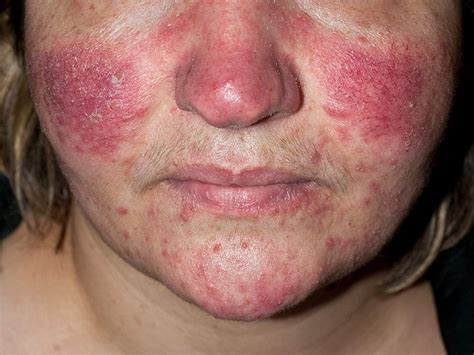 Rosacea Images Rosacea Linked To Increased Risk For Alzheimer S
