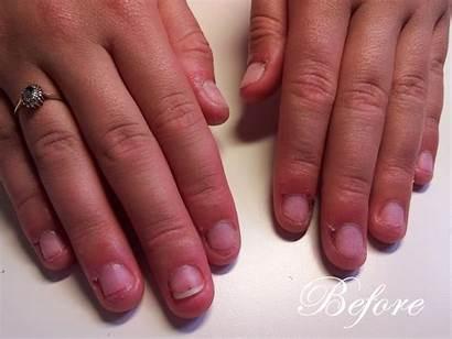 Nails Acrylic Overlay Clear Tip Bitten Gel