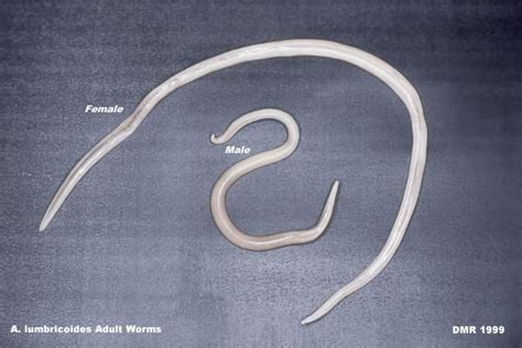 Ascaris Lumbricoides This Picture Demonstrates The Adult