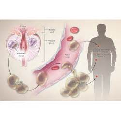 Enlarged Prostate Gland Causes Narrowing Urethra - Prostate Problems ...  Prostate Diseases Enlarged prostate