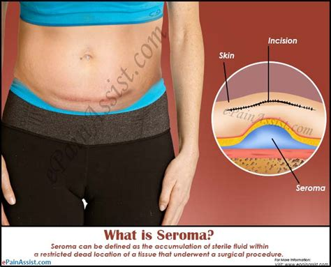 swollen after c section what is seroma symptoms treatment causes prognosis